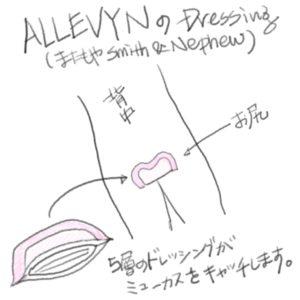 Allevyn Dressing